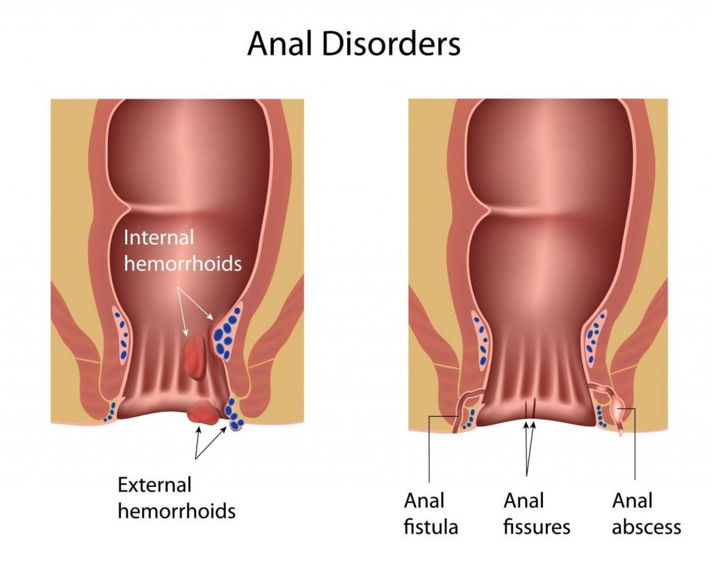 Anal Disorder