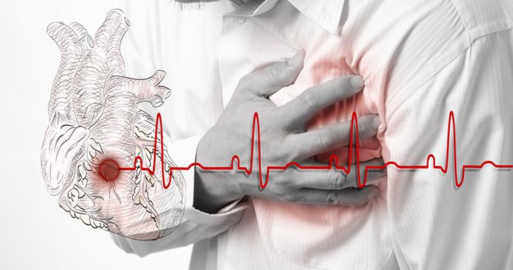 Heart palpitation, Irregular heartbeat, Ayurvedic treatment for Global LV Hypokinesia