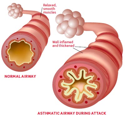 Asthmatic-air-way-during-attack