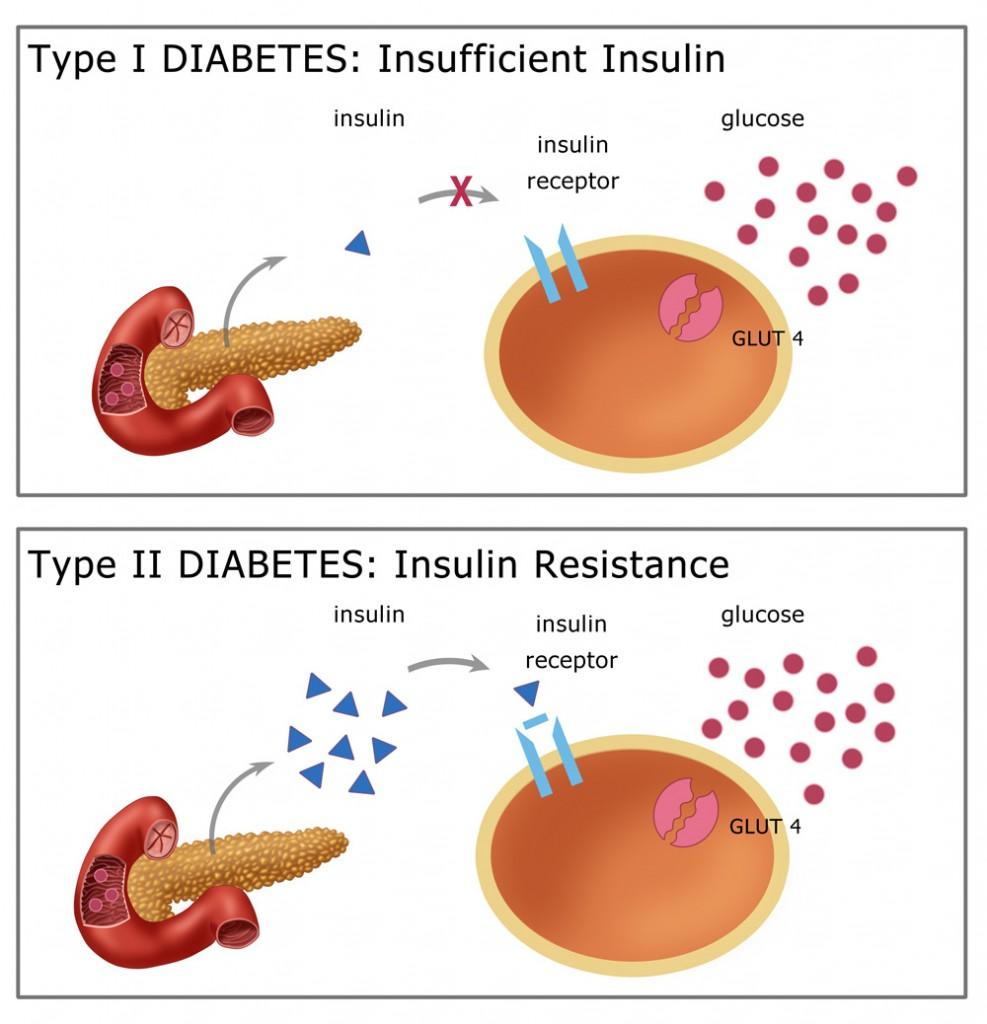 Diabetes Mellitusss
