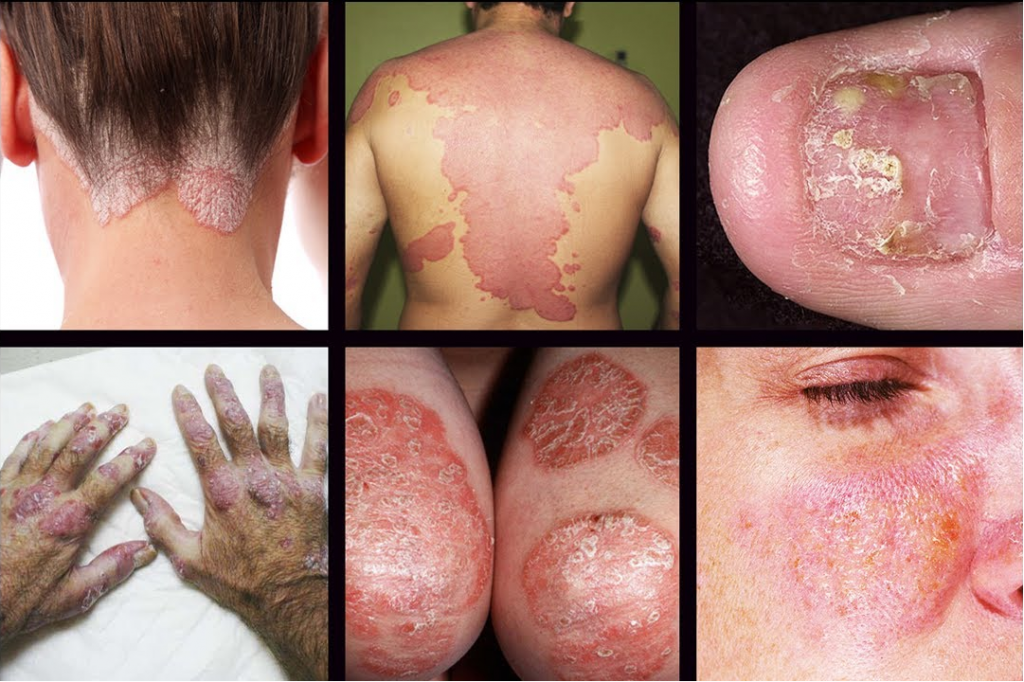 Different Types of Psoriasis