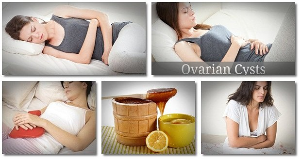 treatment-for-ovarian-cysts-symptoms