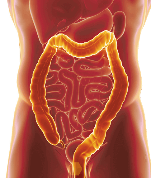 ulcerative colitis causes & treatment