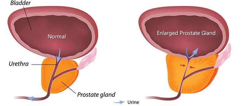 prostate-enlargement-ayurvedic-treatment
