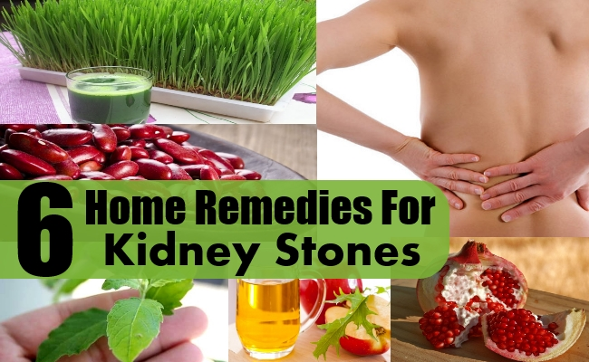 home-remedies-for-kidney-stone