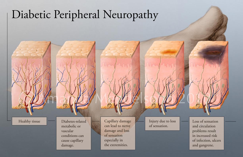neuropathy-3