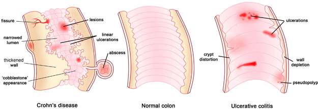 what-is-ulcerative-colitis