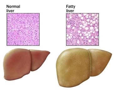 faty_liver