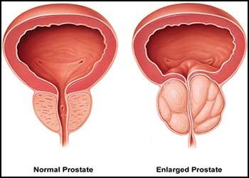 prostate enlargement