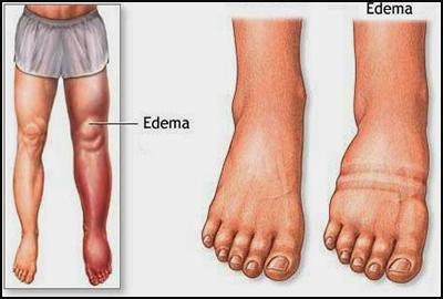 diet-treatment-to-alleviate-edema11