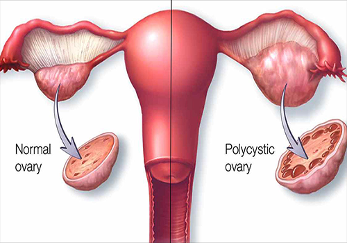Pcos Syndrome Natural Treatment