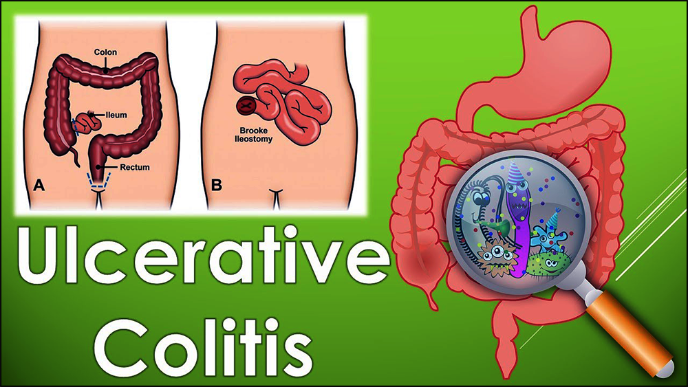 Symptoms of ulcerative colitis