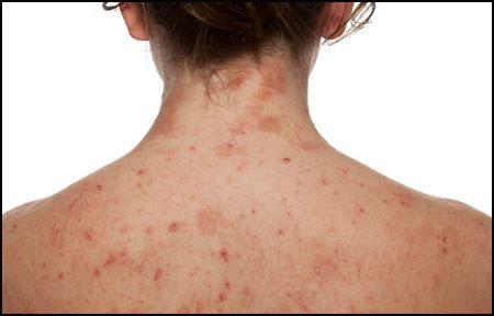 EUCERIN-INT-SC-atopic-dermatitis-body-02