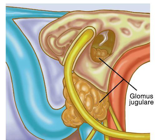 glomus-tumor-surgery-500px