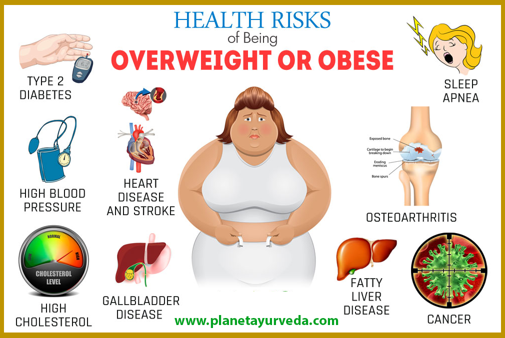 Obesity Overweight Risk Factors Weight Loss Herbal
