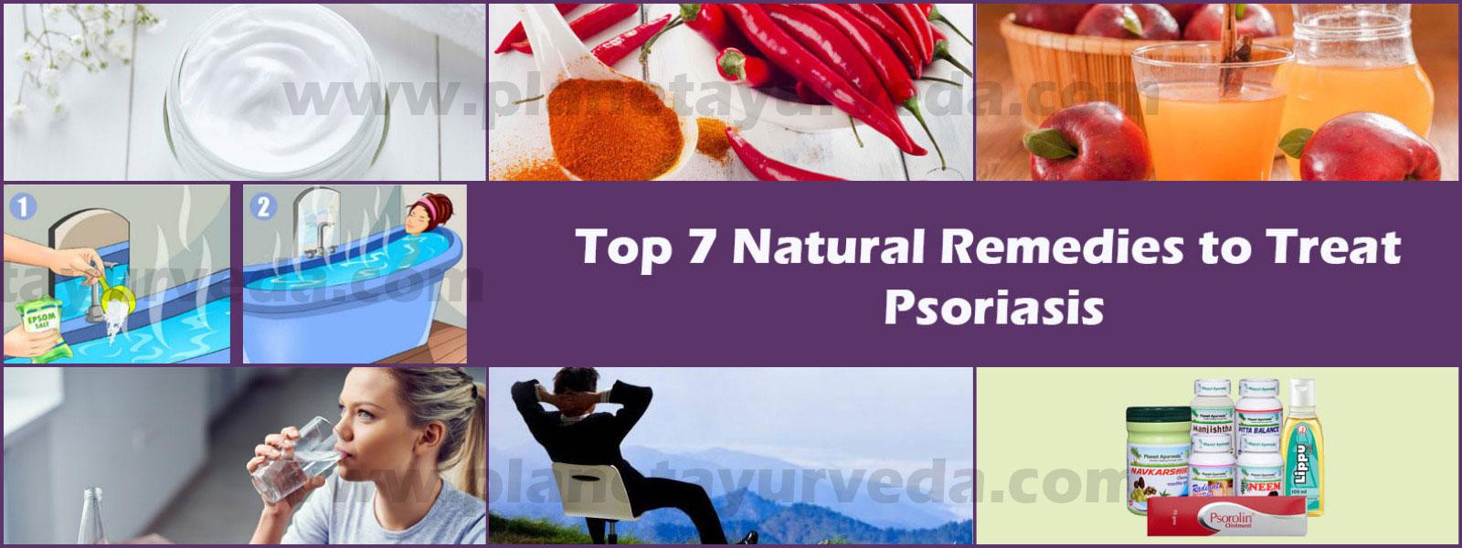 natural-remedies-for-psoriasis