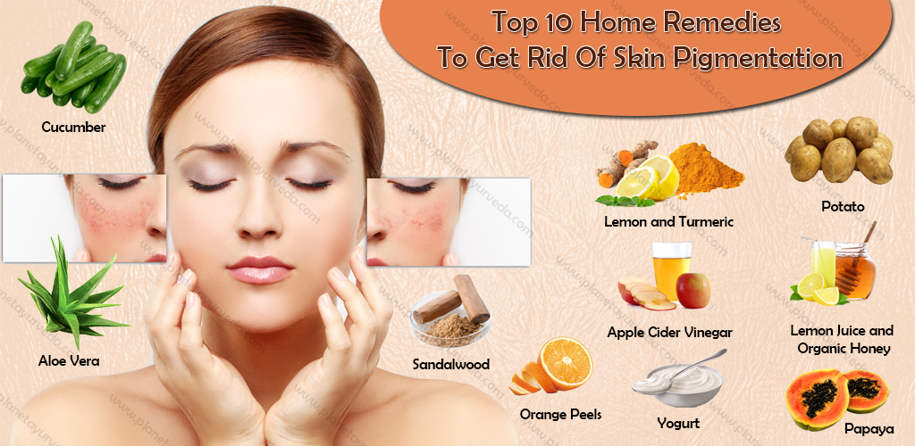 skin-pigmentation-home-remedies