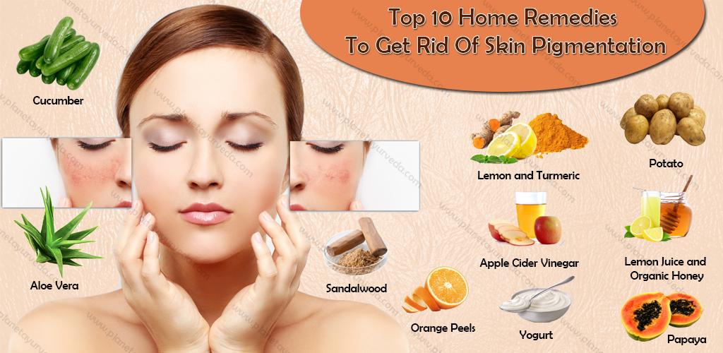 skin-pigmentation-home-remedies