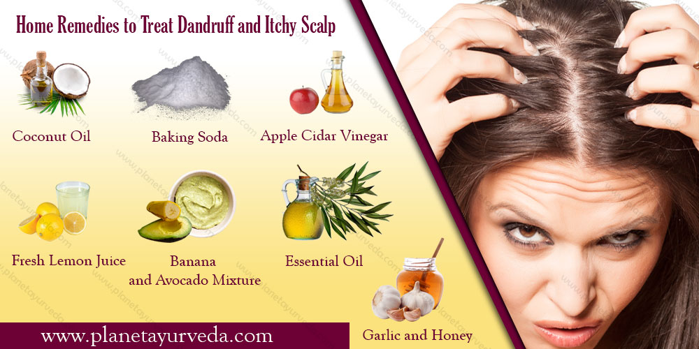 home-remedies-for-dandruff
