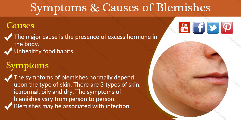 symptoms-causes-blemishes