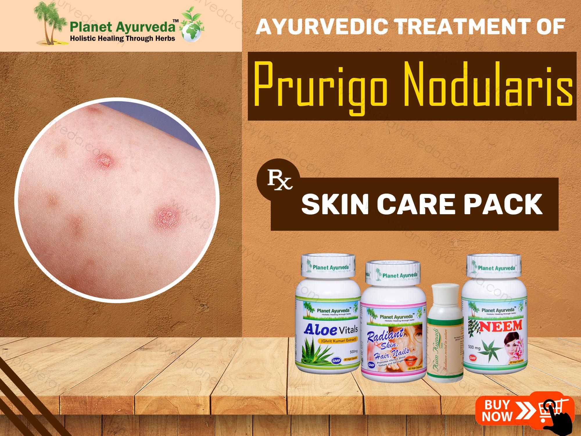 Ayurvedic-Treatment-of-Prurigo-Nodularis