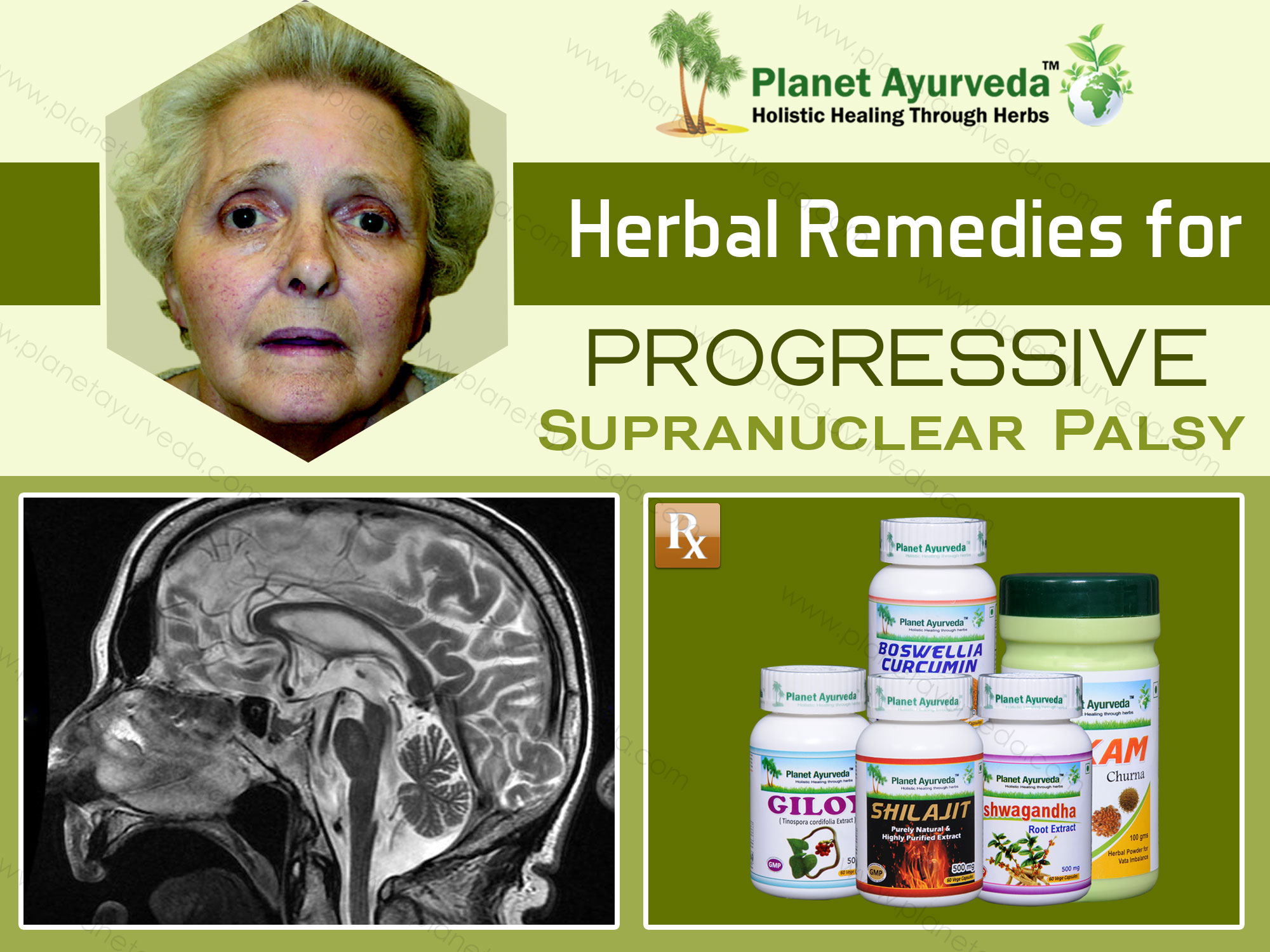 Natural-Treatment-of-Progressive-Supranuclear-Palsy