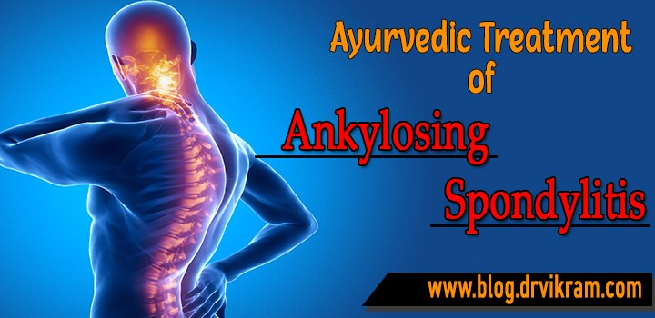 Herbal Remedies for Ankylosing Spondylitis