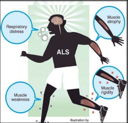 Symptoms Of Amyotrophic Lateral Sclerosis