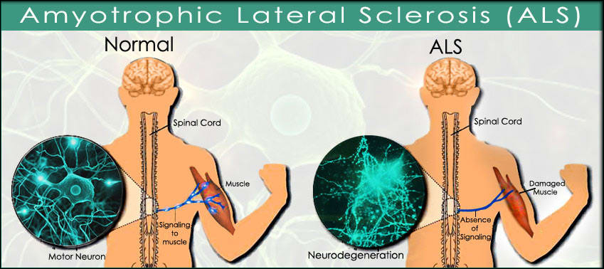 Amyotrophic Lateral Sclerosis Treatment & Management