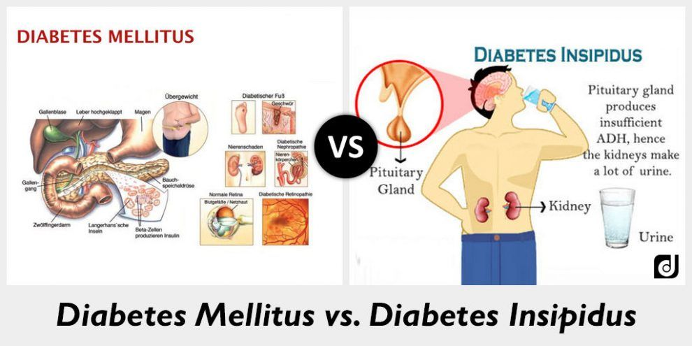 Natural Treatment of Diabetes Mellitus