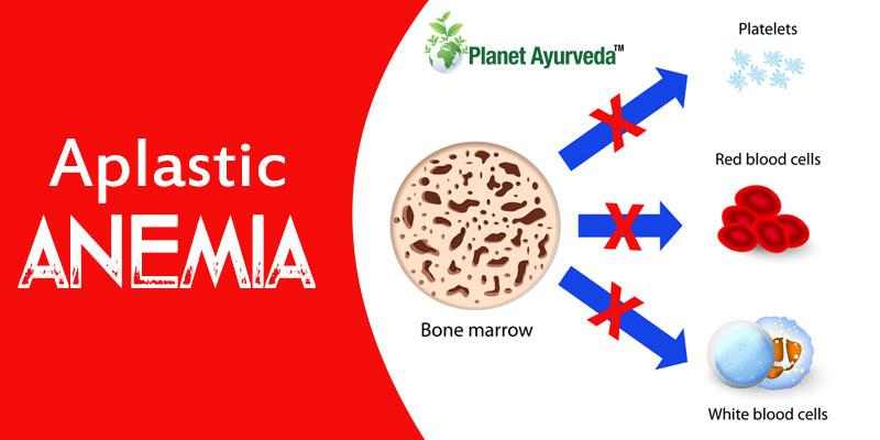 Aplastic-anaemia