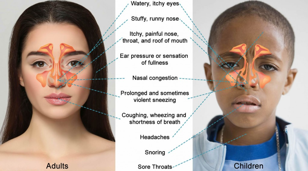 What are the Symptoms of Allergic Rhinitis