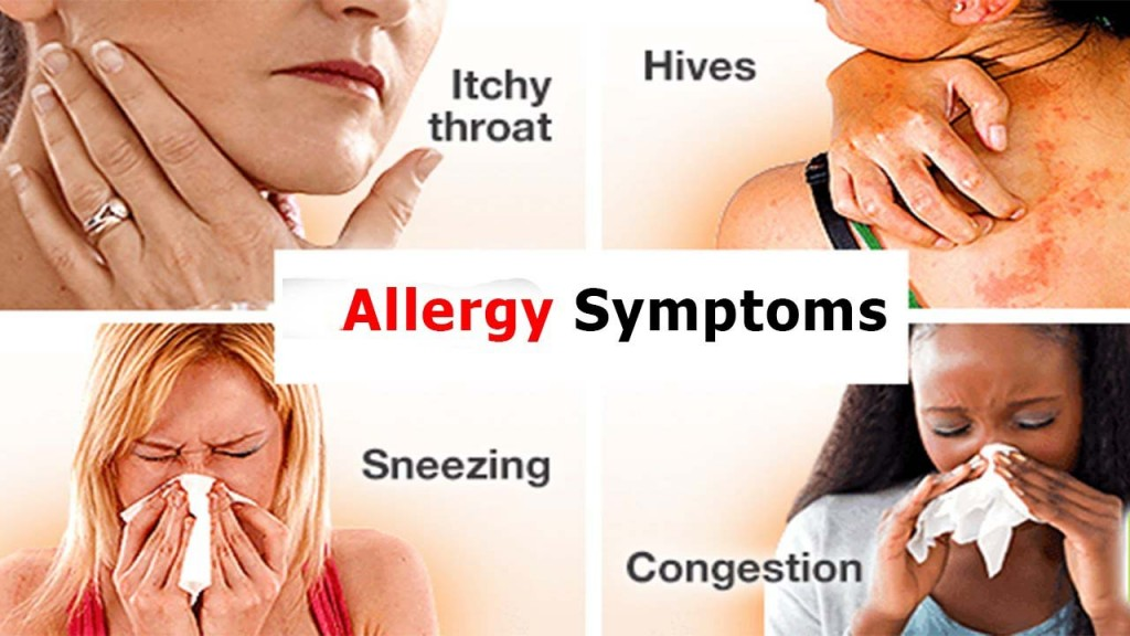 Symptoms of allergies