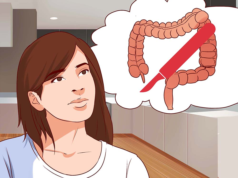 symptoms of Ulcerative Colitis