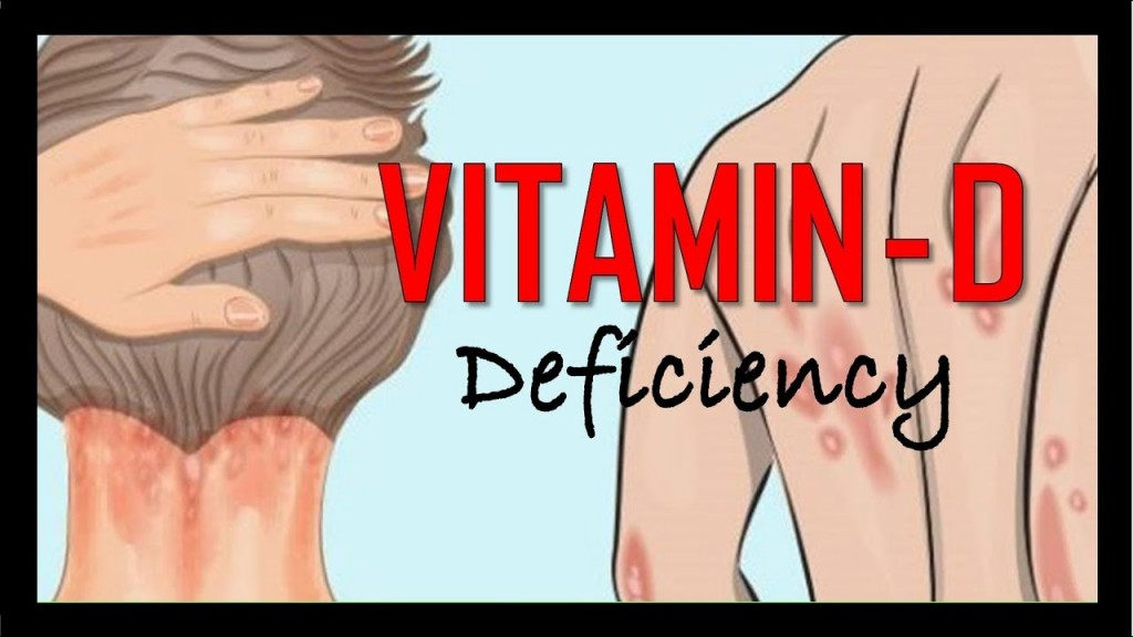 Signs and Symptoms of Vitamin D Deficiency?