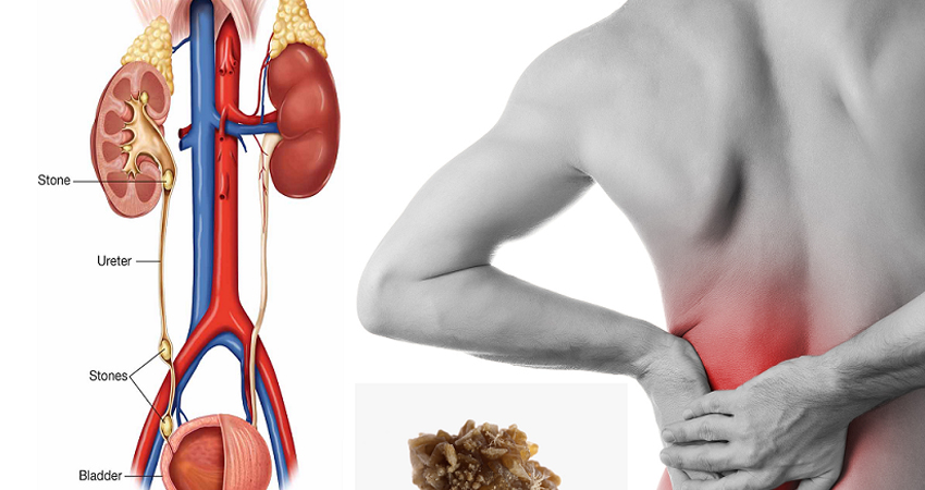 Herbal Remedy for Kidney Stone
