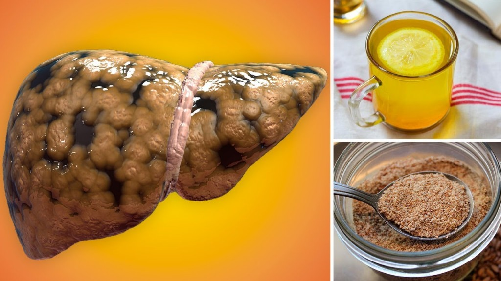 home remedies for liver failure