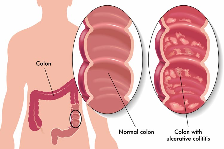 ulcerative colitis natural remedies