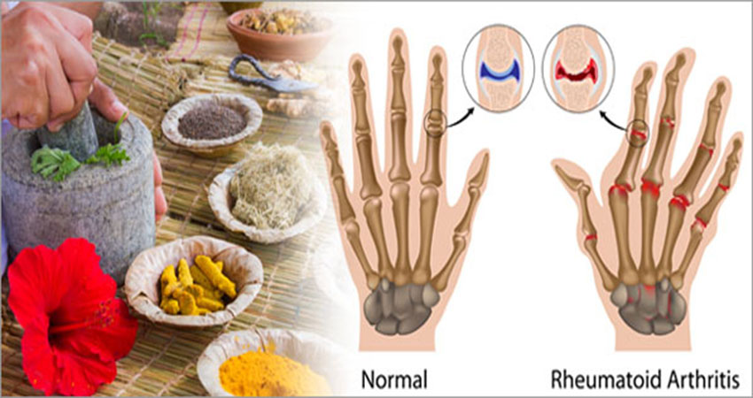 Ayurvedic Treatment of Rheumatoid Arthritis
