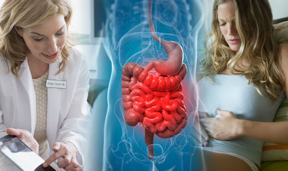 Ulcerative colitis Symptoms and causes