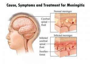 sign and symptoms of Menningitis
