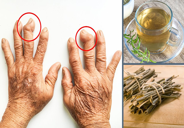 How to Treat Arthritis Pain Naturally