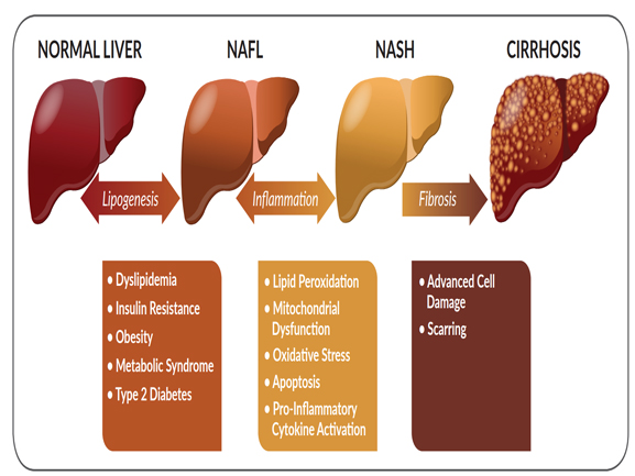 causes of liver diseases