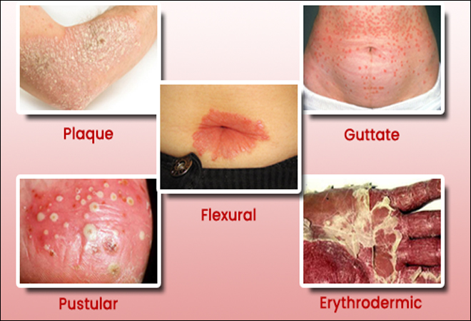 Psoriasis Treatment With Ayurveda