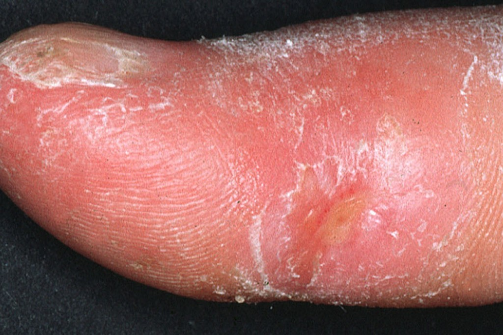 Diffused Systemic Sclerosis