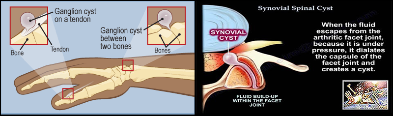 Ganglion cyst and Synovial cyst
