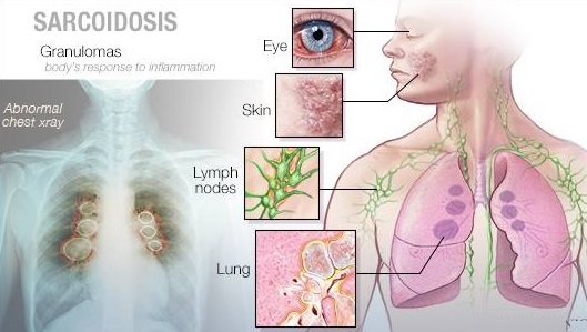 Sarcoidosis Symptoms