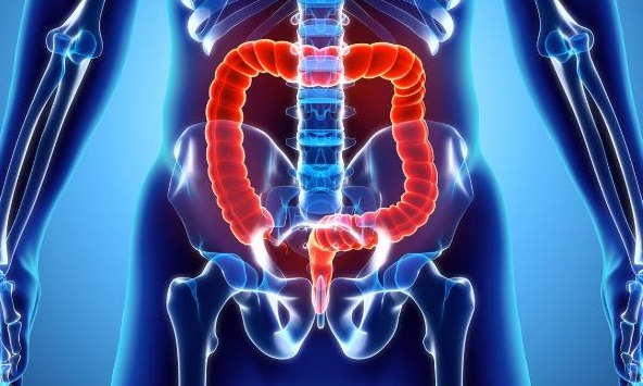 image-of-the-colon-pancolitis