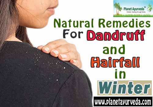 Herbal Remedies for Dandruff and Hair fall in Winter