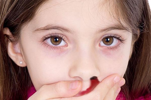 Causes of Afibrinogenemia
